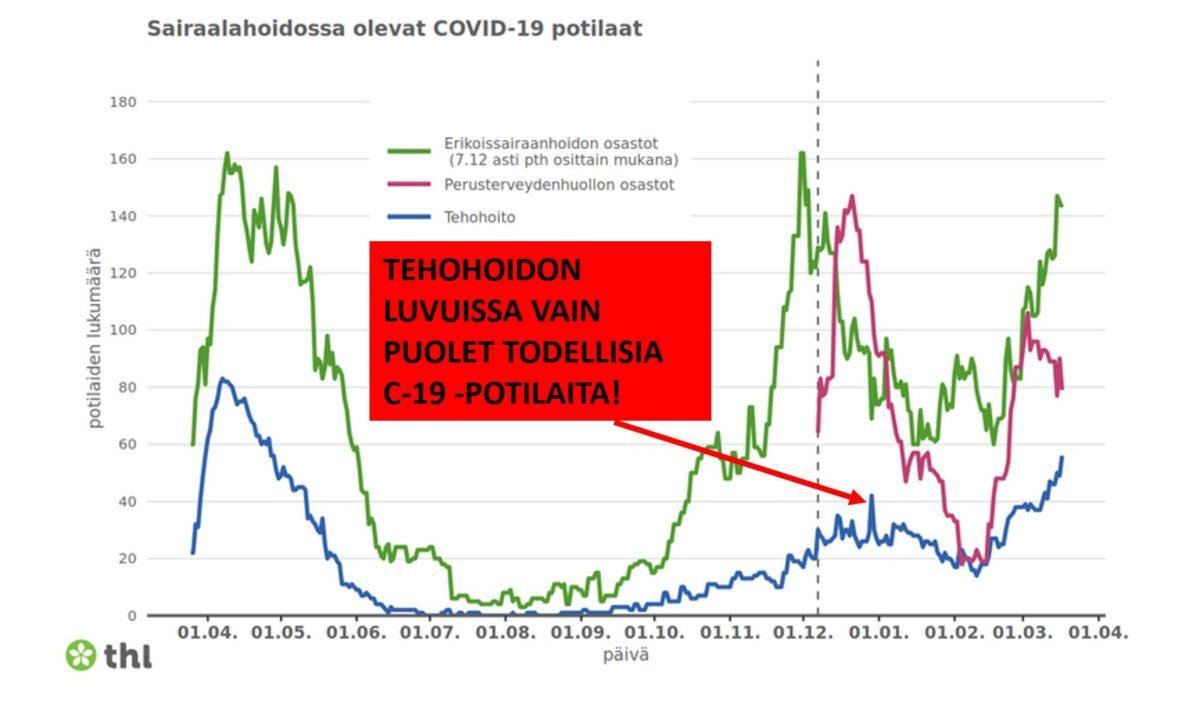 THL:n kuvaajassa sairaalahoidossa olevat COVID-19-potilaat vuoden ajalta. Tehohoidon luvuissa vain puolet todellisia C-19-potilaita.